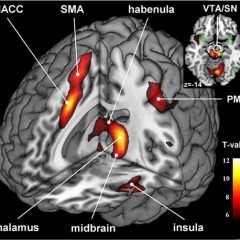 L'habénula, petit pois dans le cerveau, pèse lourd dans la dépression
