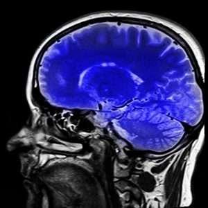 IRM-du-cerveau