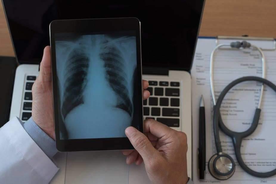 Radio du torse d'un patient reçue sur une tablette numérique. Shutterstock