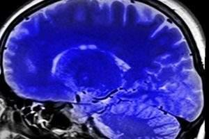 Cliché du cerveau obtenu par IRM. Kai Stachowiak