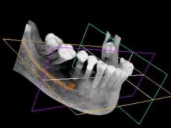 Mâchoire numérisée. Dent3D/Wikimedia, CC BY