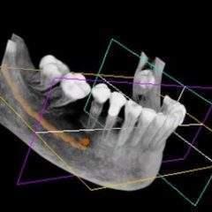 Orthodontiste numérique