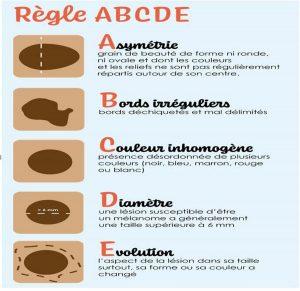 Cancer de la peau, règle ABCDE